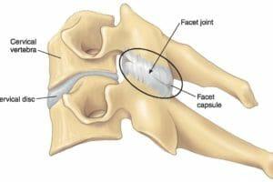 O que é a dor facetária ou artrose da articulação das facetas?