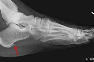 Dor na sola do pé: Esporão de calcâneo