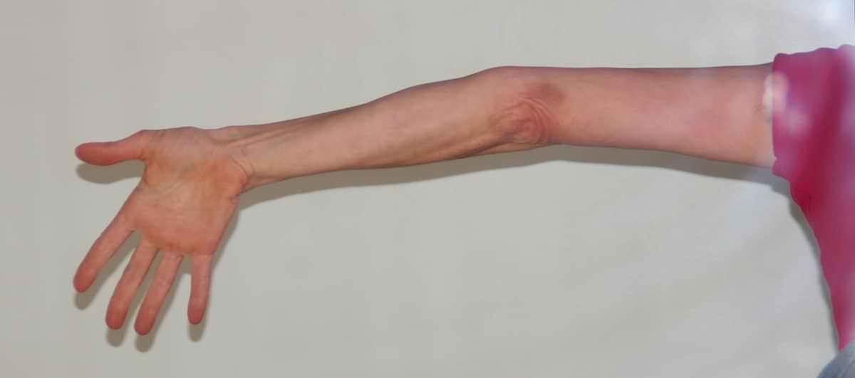 Sensação de queimação muscular na panturrilha