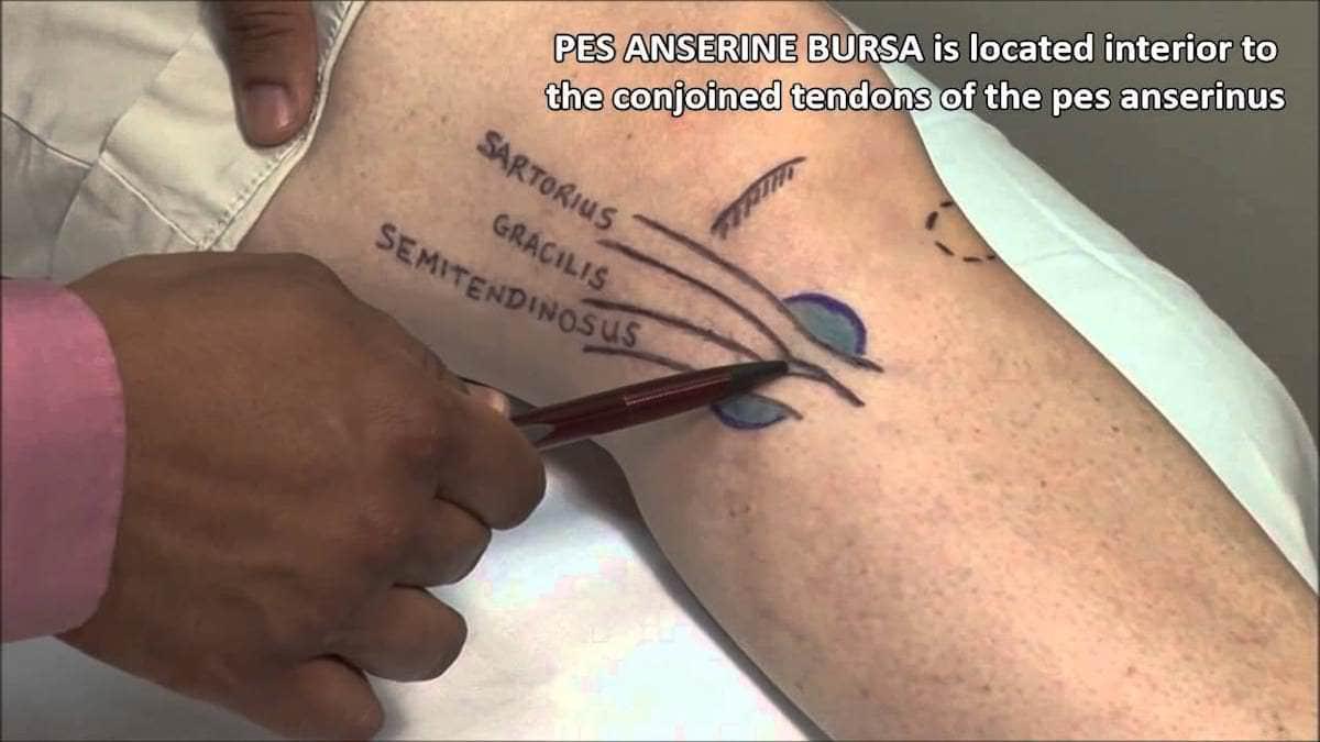 localizacao-bursite-anserina
