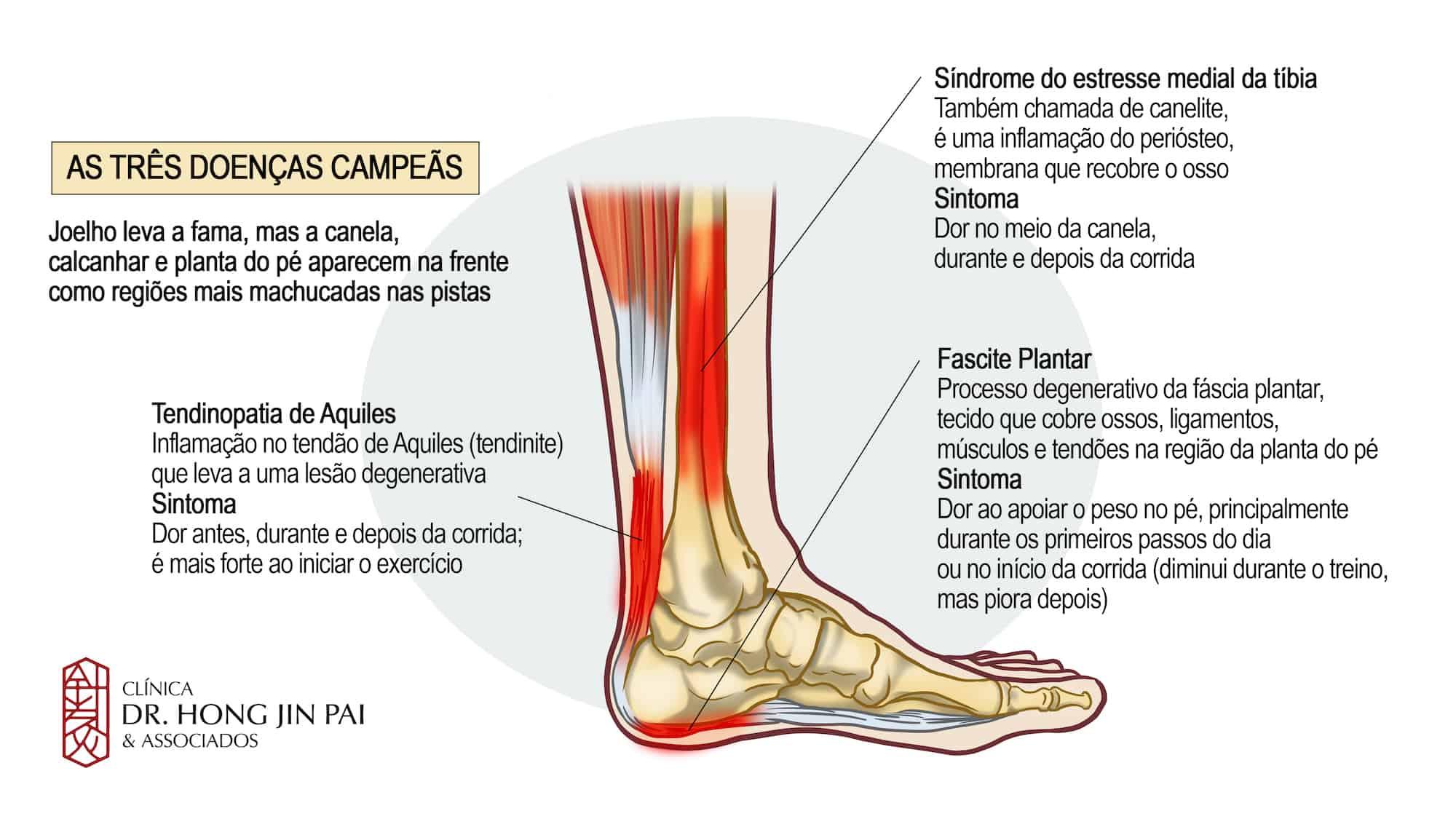 Causas comuns de dor nas pernas e pés