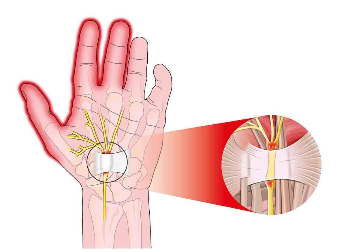 Sem dor pulso perto inchado do antebraço