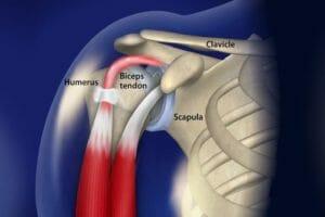 Dor no ombro: Tendinopatia do Bíceps