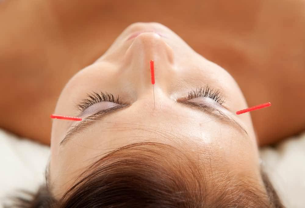 acupuntura relaxamento marcus yu bin pai