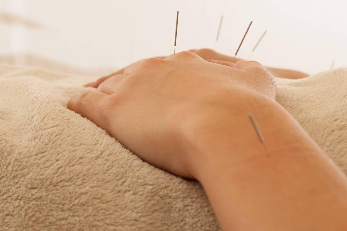 acupuntura mao sao paulo