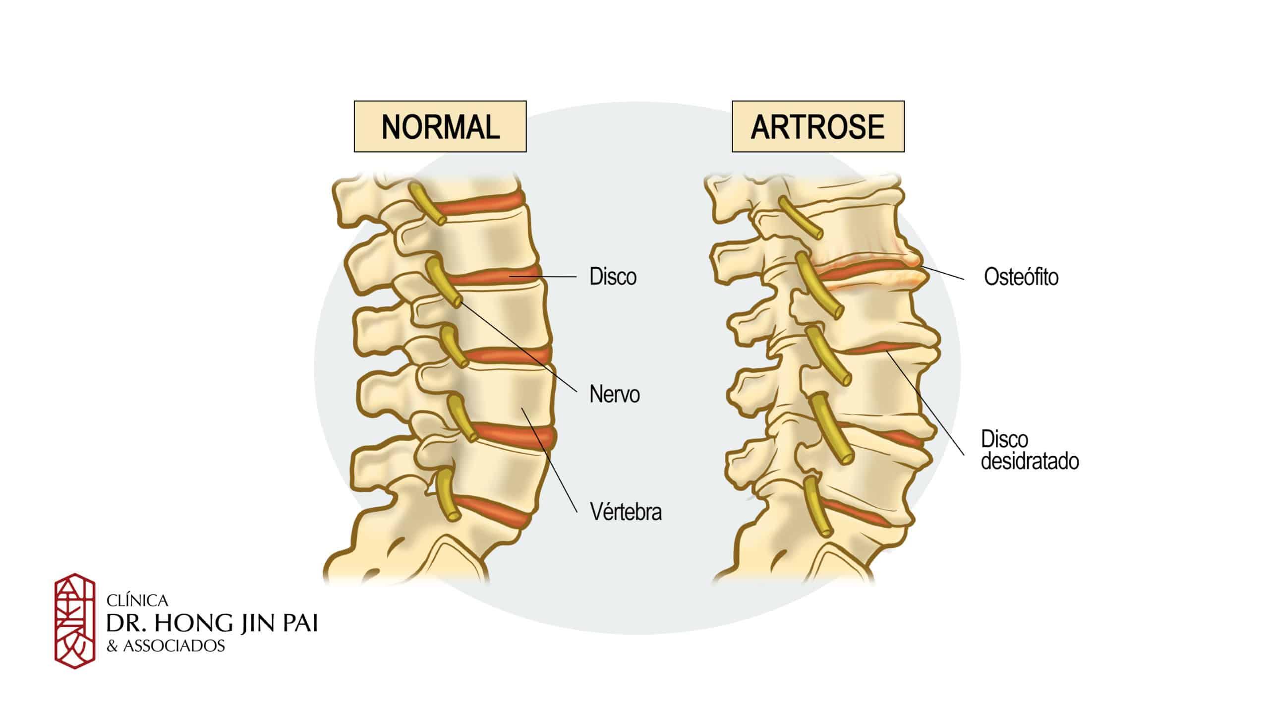 A artrose da coluna é o desgaste das articulações desta área do corpo e provoca sintomas como dor e dificuldade para movimentar