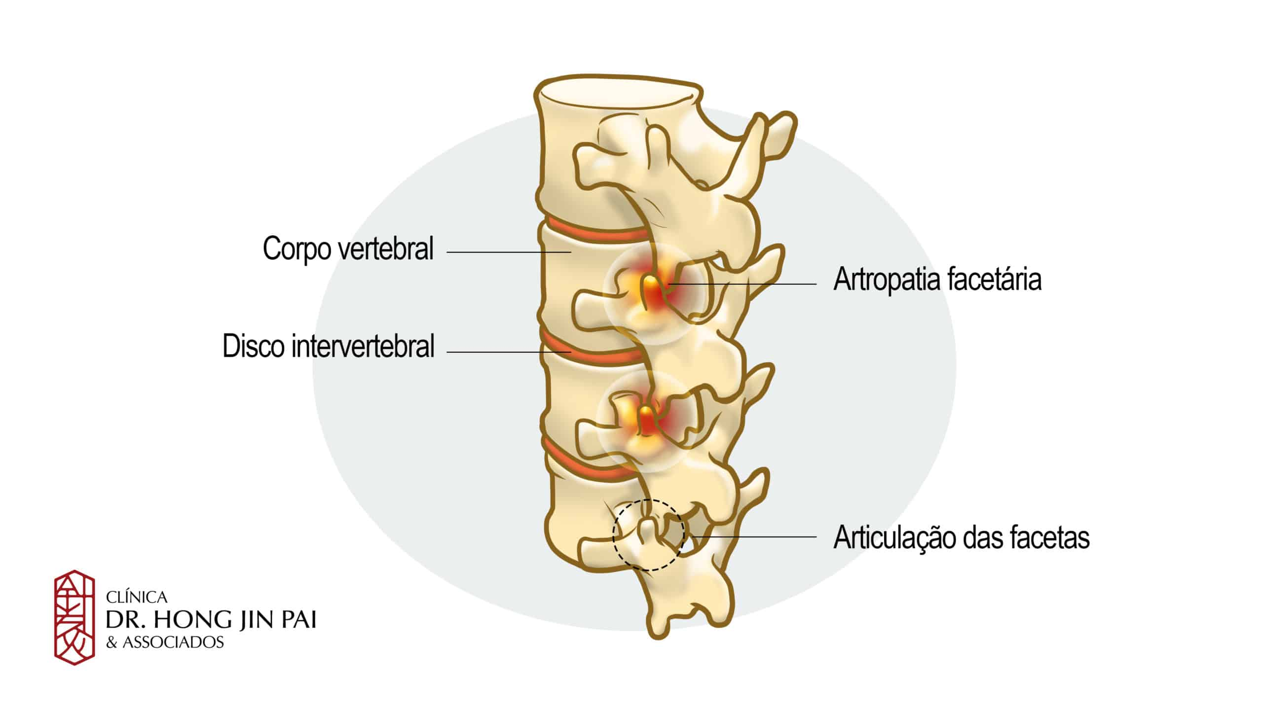 Dor Facetária. É uma condição muito comum na coluna vertebral e uma das principais causas de dor crônica