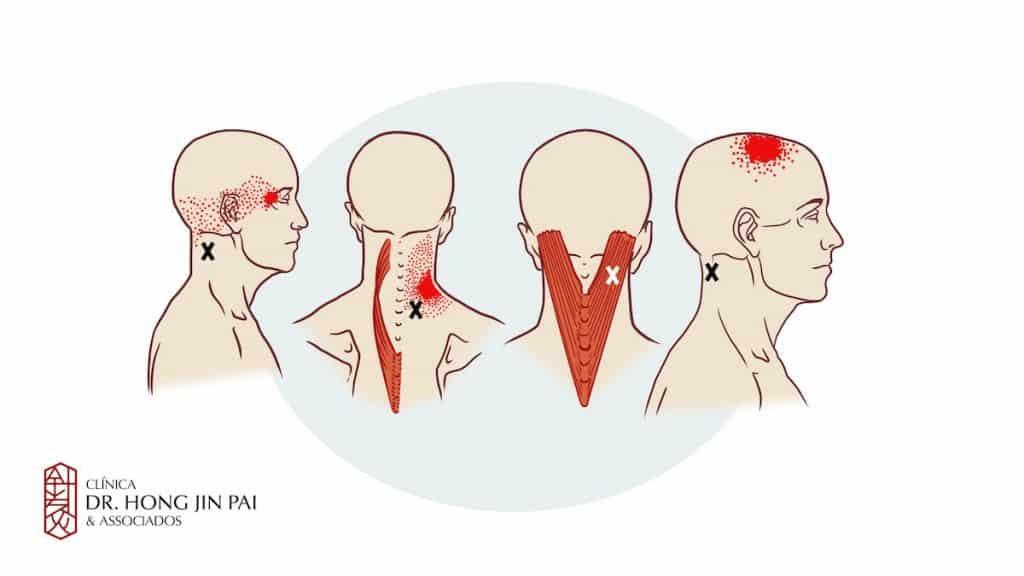Síndrome Dolorosa Miofascial Cervical - Dor no pescoco