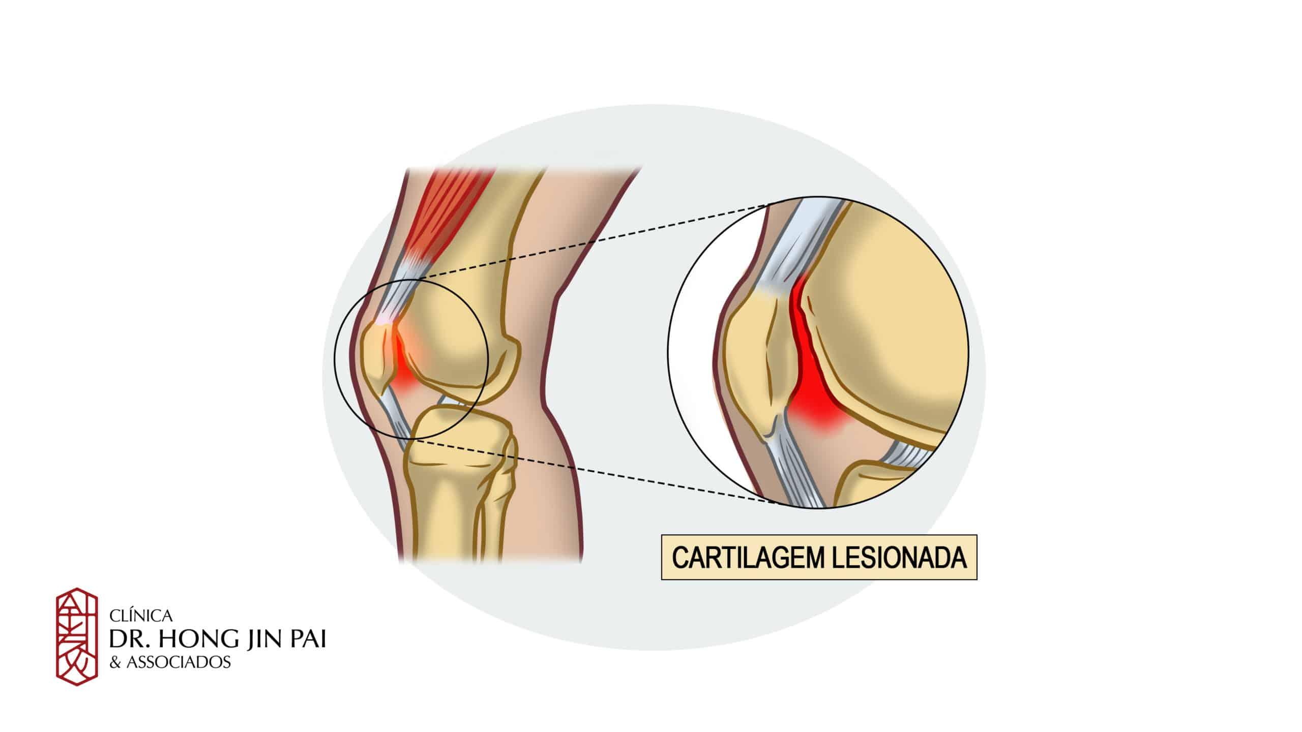 Os principais sintomas da condromalacia patelar são: Dor no joelho ao subir e descer escadas, correr ou levantar-se da cadeira