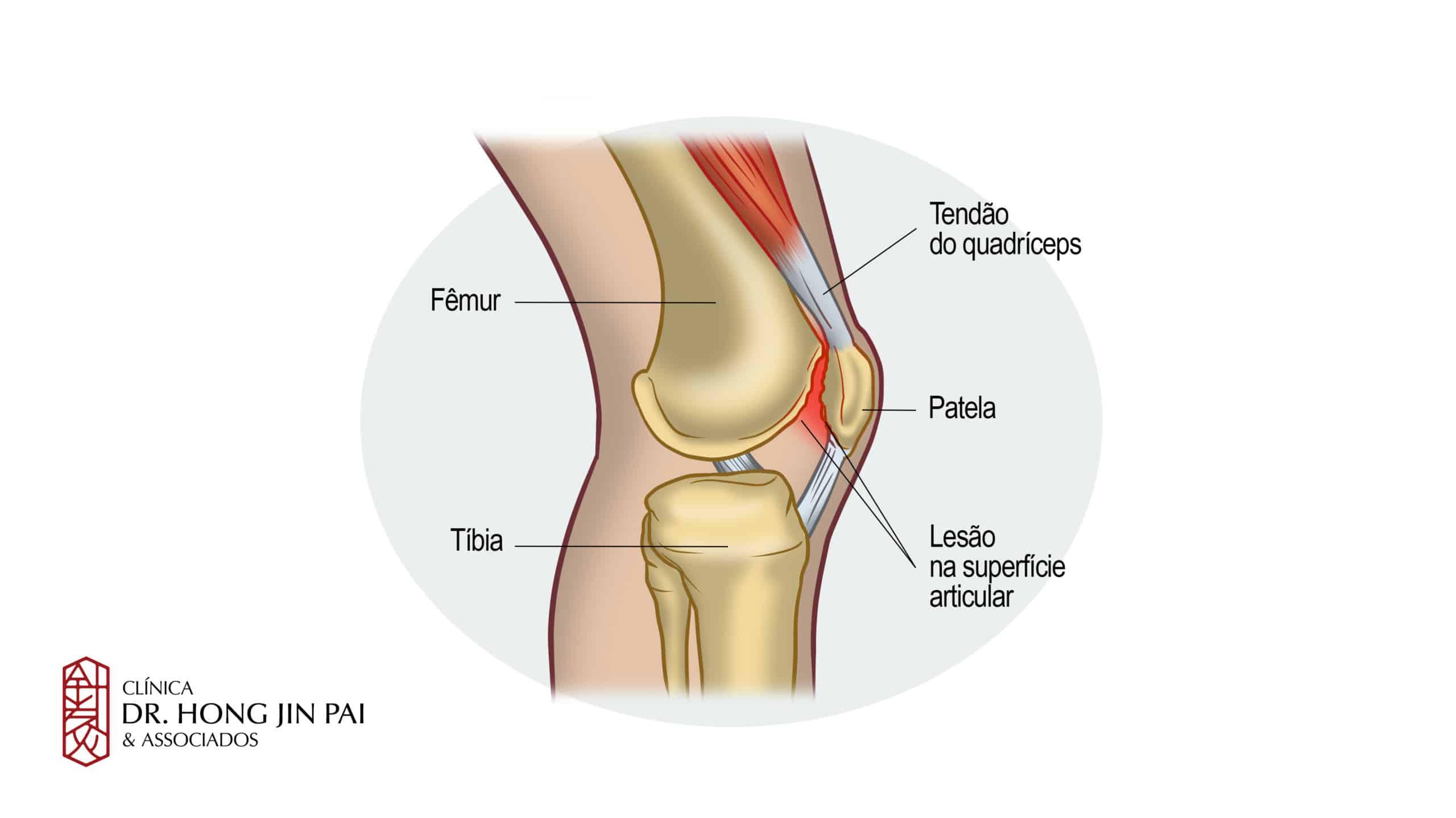 A Síndrome da Dor Femoropatelar é uma das desordens mais frequentes do joelho, caracterizada por dor anterior no joelho