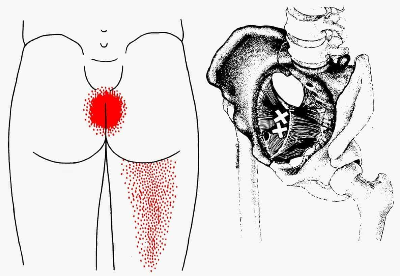 Pulso e dor inchados após angiograma