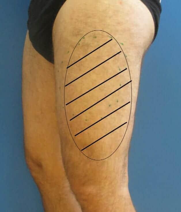 Esquerda perna externa dormência da