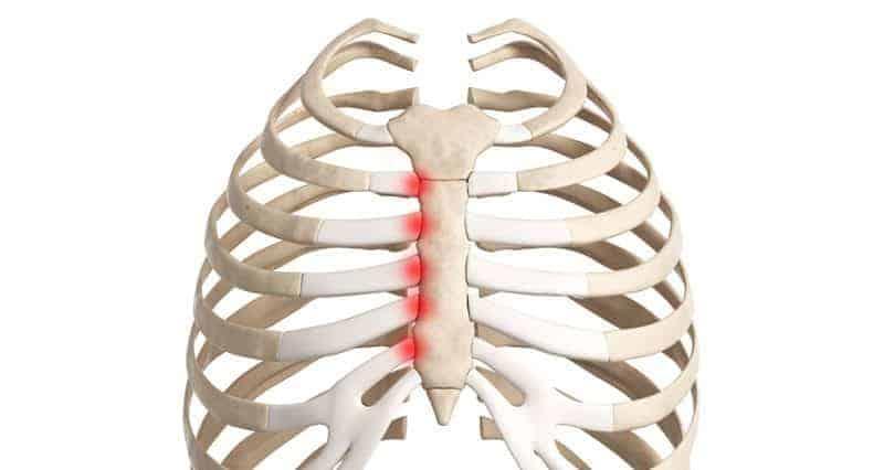 dores nas costelas costas