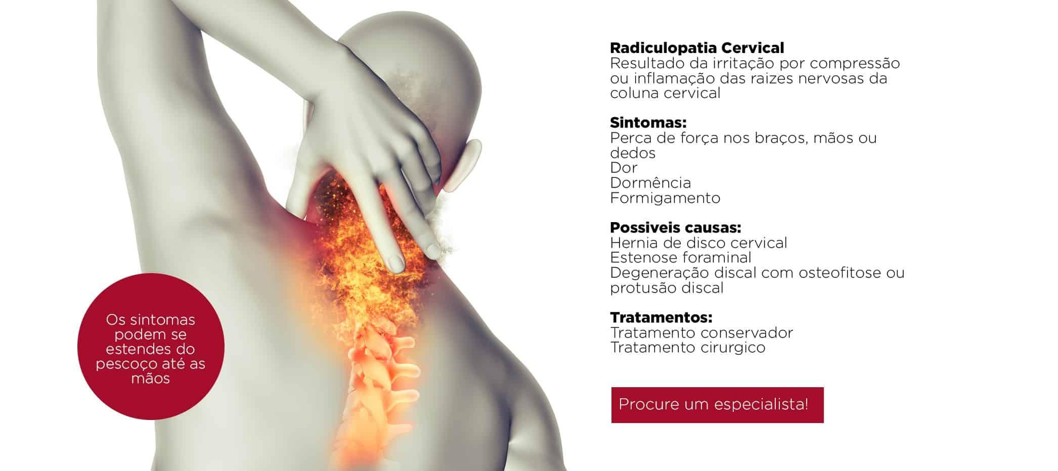 dor nas pernas do nervo comprimido na região lombar