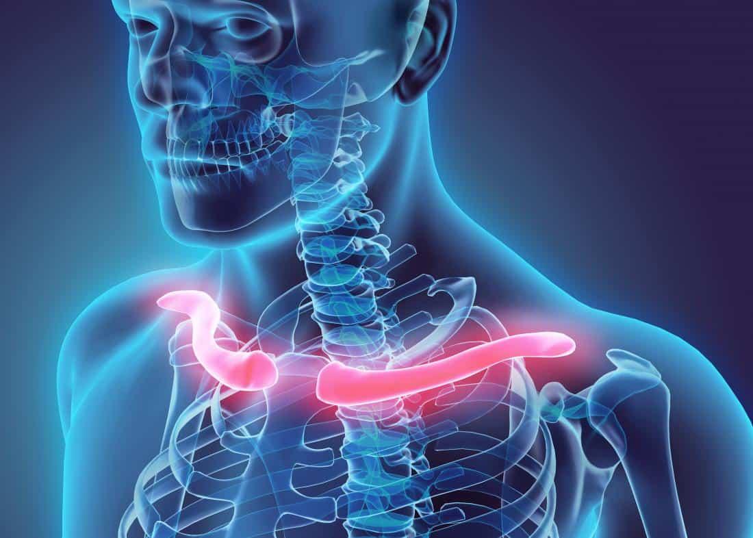 """O ombro é a articulação mais móvel do corpo humano, no entanto sua grande amplitude de movimentos a torna suscetível a lesões. Um dos ossos que se encontram nessa estrutura é a clavícula, conhecida popularmente como """"saboneteira"""". Devido à localização, não é incomum que lesões nos membros superiores causem dor na clavícula."""